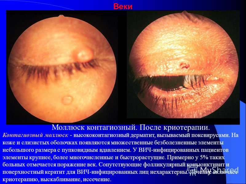 ВекиСаркома Капоши Саркома Капоши - высоковаскуляризированная безболезненная мезенхимальная опухоль, поражающая кожу и слизистые оболочки примерно у 25% ВИЧ-позитивных пациентов. У 20% таких пациентов выявляется бессимптомная саркома Капоши век или к