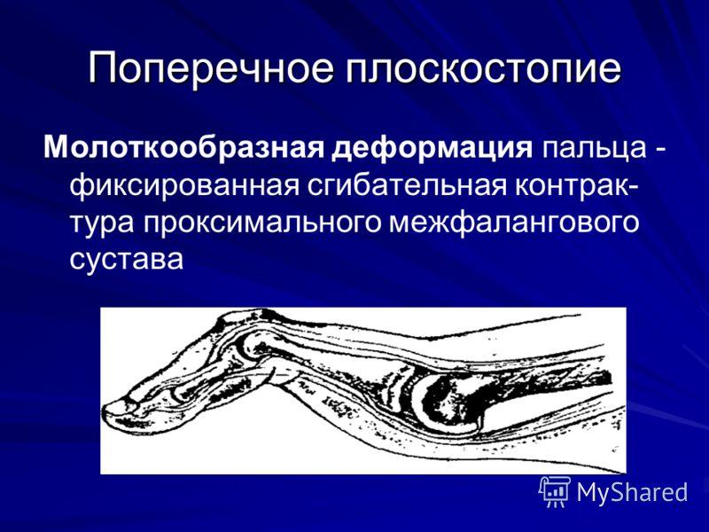 Поперечное плоскостопие Молоткообразная деформация пальца - фиксированная сгибательная контрак- тура проксимального межфалангового сустава