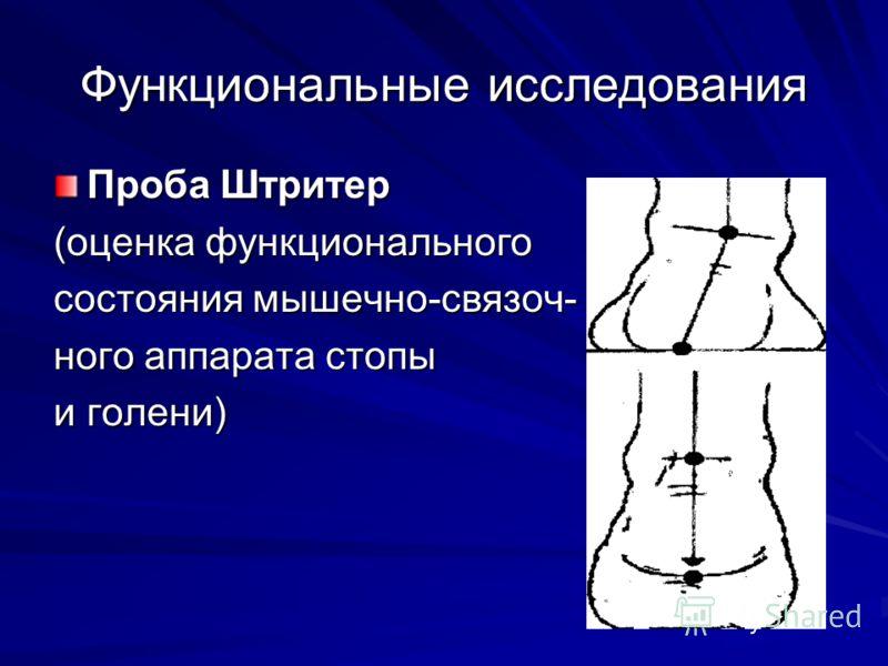 Функциональные исследования Проба Штритер (оценка функционального состояния мышечно-связоч- ного аппарата стопы и голени)