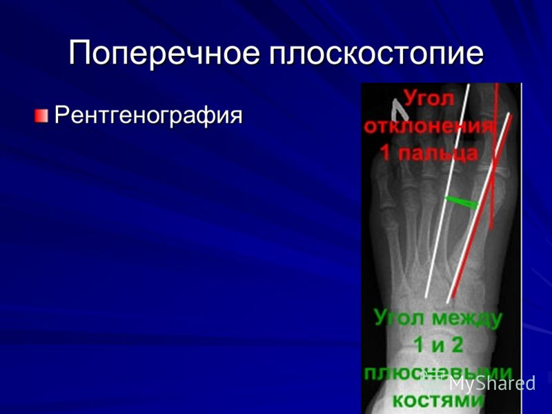 Поперечное плоскостопие Рентгенография