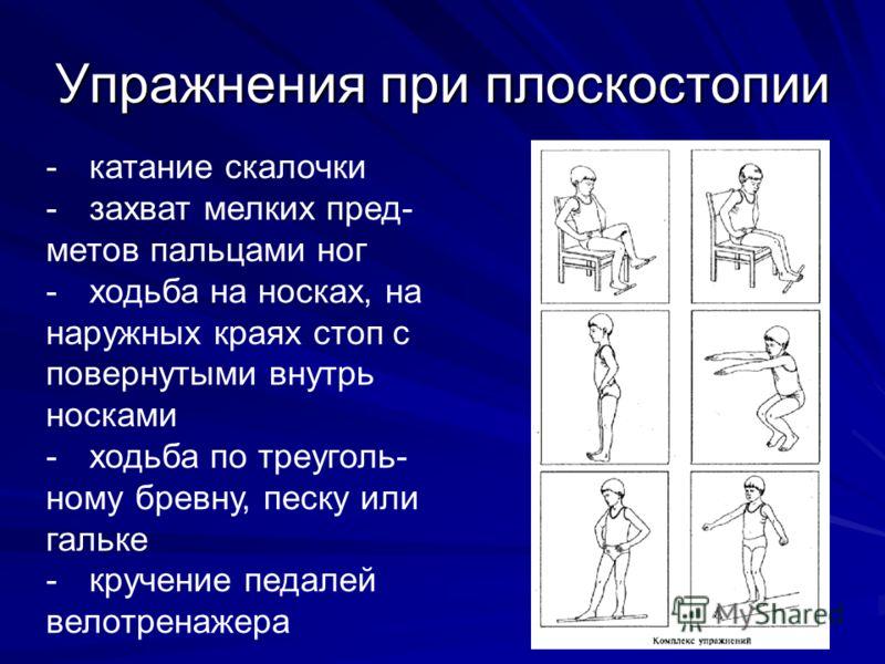 Упражнения при плоскостопии -катание скалочки -захват мелких пред- метов пальцами ног -ходьба на носках, на наружных краях стоп с повернутыми внутрь носками -ходьба по треуголь- ному бревну, песку или гальке -кручение педалей велотренажера