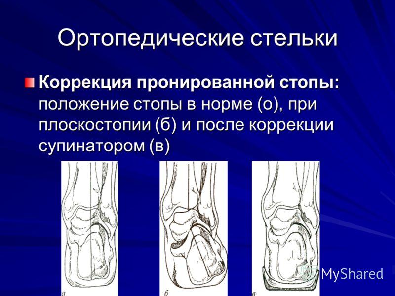 Коррекция пронированной стопы: положение стопы в норме (о), при плоскостопии (б) и после коррекции супинатором (в)
