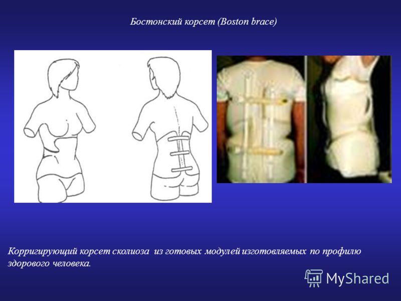 Корригирующий корсет сколиоза из готовых модулей изготовляемых по профилю здорового человека. Бостонский корсет (Boston brace)