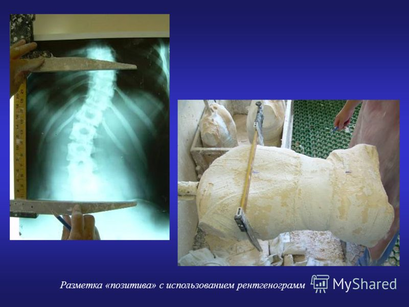 Разметка «позитива» с использованием рентгенограмм