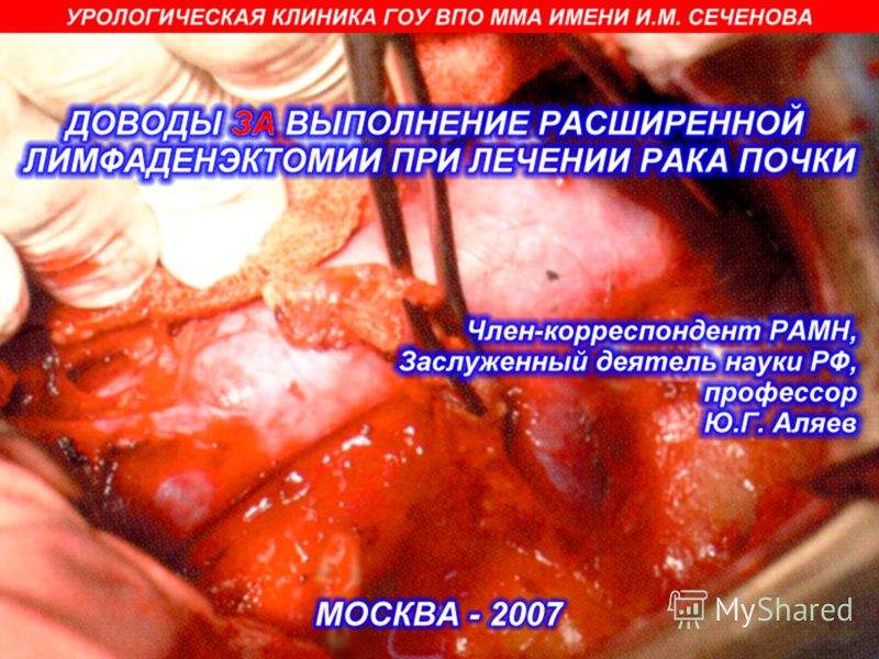 Лимфаденэктомия фото
