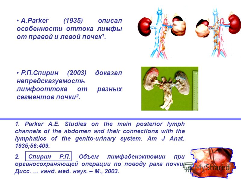 1. Parker A.E. Studies on the main posterior lymph channels of the abdomen and their connections with the lymphatics of the genito-urinary system. Am J Anat. 1935;56:409. 2. Спирин Р.П. Объем лимфаденэктомии при органосохраняющей операции по поводу р