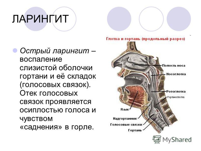 ЛАРИНГИТ Острый ларингит – воспаление слизистой оболочки гортани и её складок (голосовых связок). Отек голосовых связок проявляется осиплостью голоса и чувством «саднения» в горле.