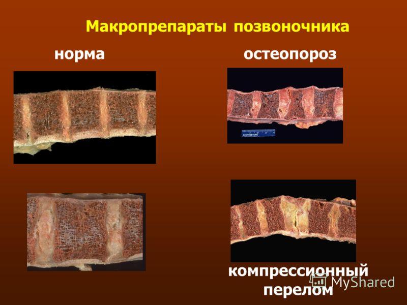 Макропрепараты позвоночника нормаостеопороз компрессионный перелом