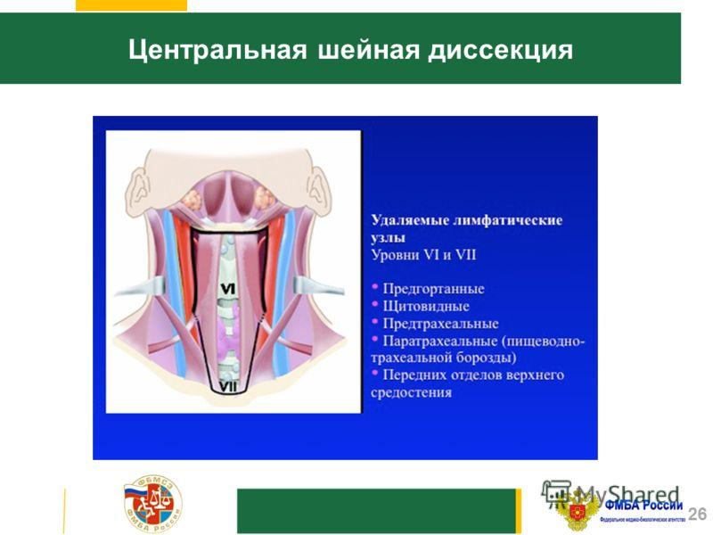 Центральная шейная диссекция 26
