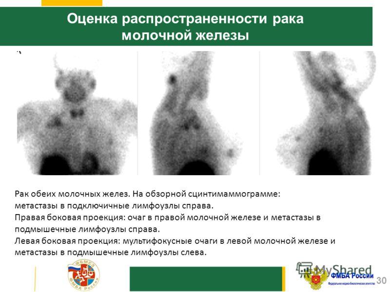 Оценка распространенности рака молочной железы Рак обеих молочных желез. На обзорной сцинтимаммограмме: метастазы в подключичные лимфоузлы справа. Правая боковая проекция: очаг в правой молочной железе и метастазы в подмышечные лимфоузлы справа. Лева