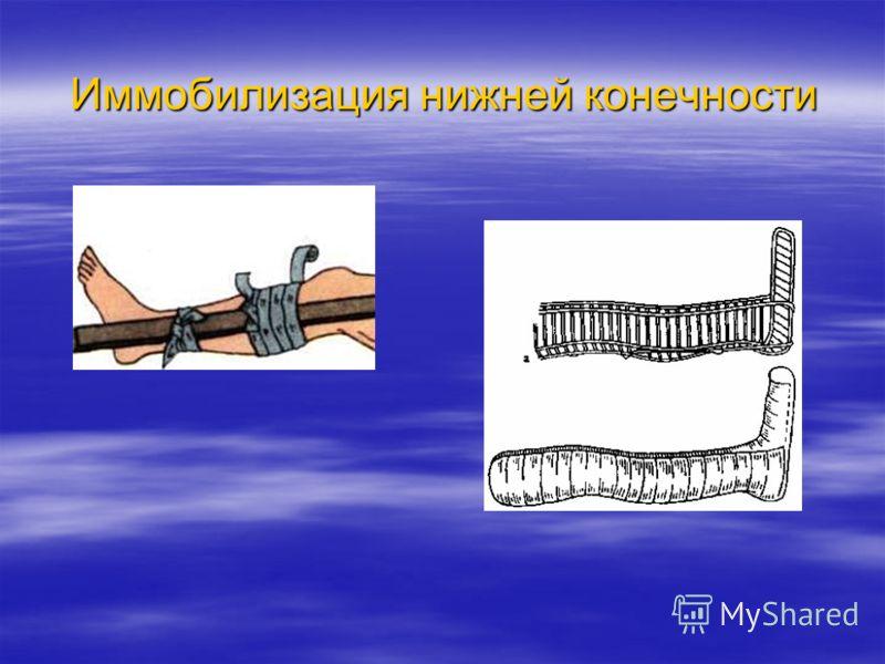 Иммобилизация нижней конечности