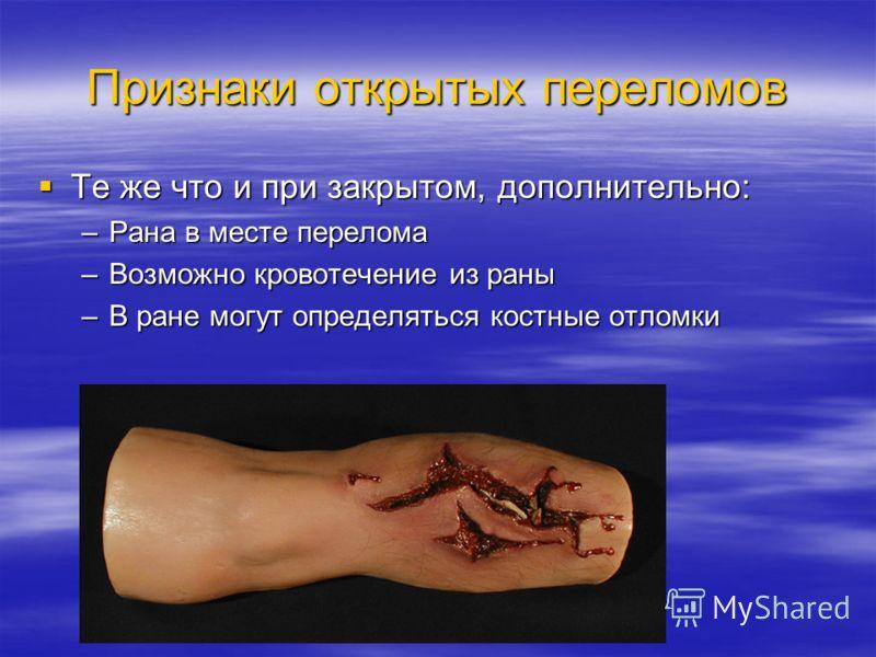 Признаки открытых переломов Те же что и при закрытом, дополнительно: Те же что и при закрытом, дополнительно: –Рана в месте перелома –Возможно кровотечение из раны –В ране могут определяться костные отломки