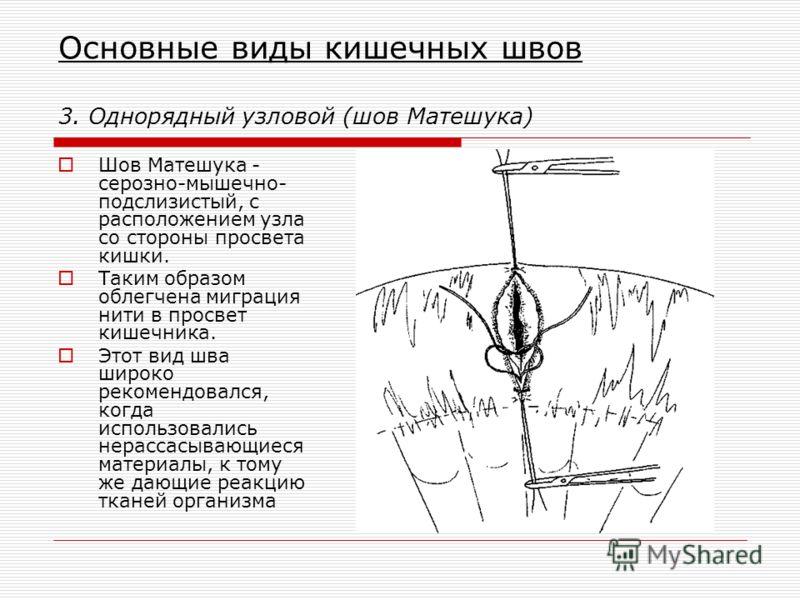 Основные виды кишечных швов 3. Однорядный узловой (шов Матешука) Шов Матешука - серозно-мышечно- подслизистый, с расположением узла со стороны просвета кишки. Таким образом облегчена миграция нити в просвет кишечника. Этот вид шва широко рекомендовал