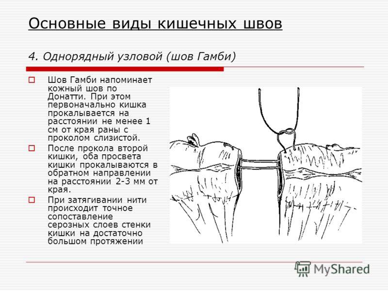 Основные виды кишечных швов 4. Однорядный узловой (шов Гамби) Шов Гамби напоминает кожный шов по Донатти. При этом первоначально кишка прокалывается на расстоянии не менее 1 см от края раны с проколом слизистой. После прокола второй кишки, оба просве
