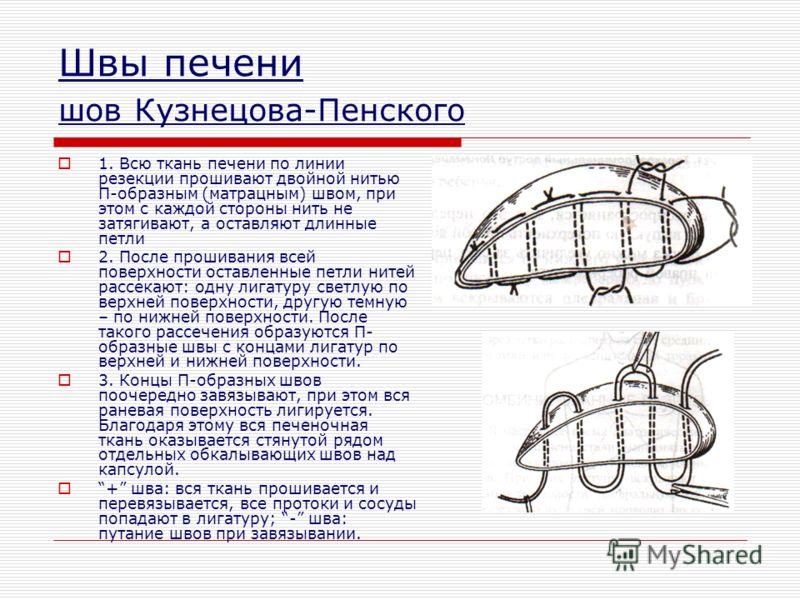 Швы печени шов Кузнецова-Пенского 1. Всю ткань печени по линии резекции прошивают двойной нитью П-образным (матрацным) швом, при этом с каждой стороны нить не затягивают, а оставляют длинные петли 2. После прошивания всей поверхности оставленные петл