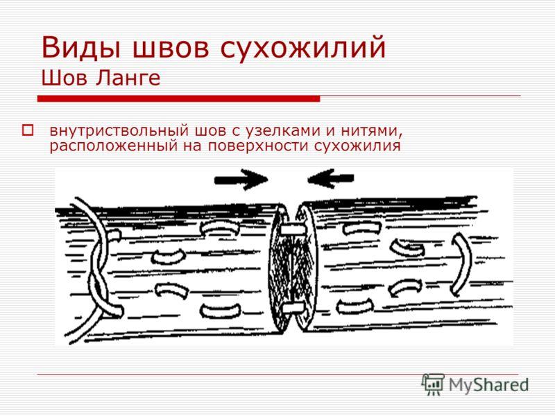 Виды швов сухожилий Шов Ланге внутриствольный шов с узелками и нитями, расположенный на поверхности сухожилия