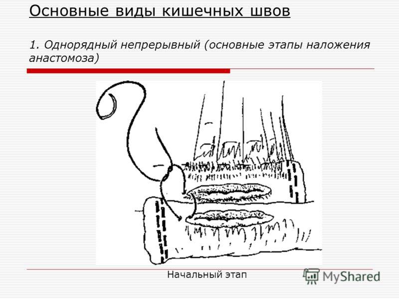 Основные виды кишечных швов 1. Однорядный непрерывный (основные этапы наложения анастомоза) Начальный этап