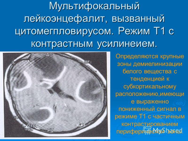 Мультифокальный лейкоэнцефалит, вызванный цитомегпловирусом. Режим Т1 с контрастным усилинеием. Определяются крупные зоны демиелинизации белого вещества с тенденцией к субкортикальному расположению,имеющи е выраженно пониженный сигнал в режиме Т1 с ч