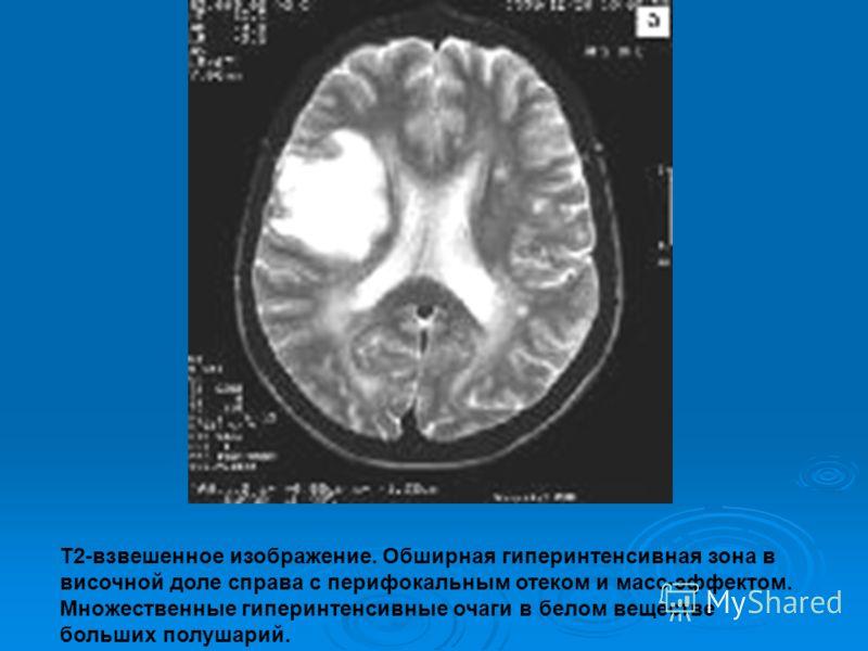 Т2-взвешенное изображение. Обширная гиперинтенсивная зона в височной доле справа с перифокальным отеком и масс-эффектом. Множественные гиперинтенсивные очаги в белом веществе больших полушарий.