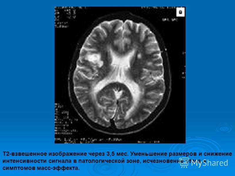 Т2-взвешенное изображение через 3,5 мес. Уменьшение размеров и снижение интенсивности сигнала в патологической зоне, исчезновение отека и симптомов масс-эффекта.