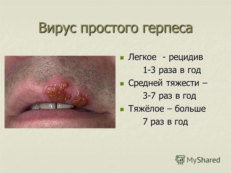 Вирус простого герпеса Легкое - рецидив Легкое - рецидив 1-3 раза в год Средней тяжести – Средней тяжести – 3-7 раз в год Тяжёлое – больше Тяжёлое – больше 7 раз в год