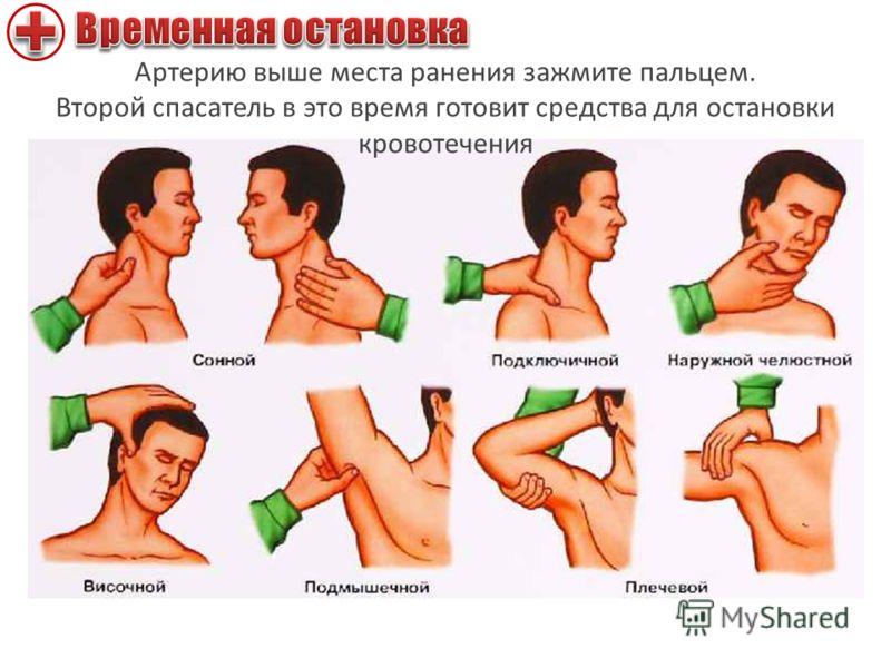 Артерию выше места ранения зажмите пальцем. Второй спасатель в это время готовит средства для остановки кровотечения