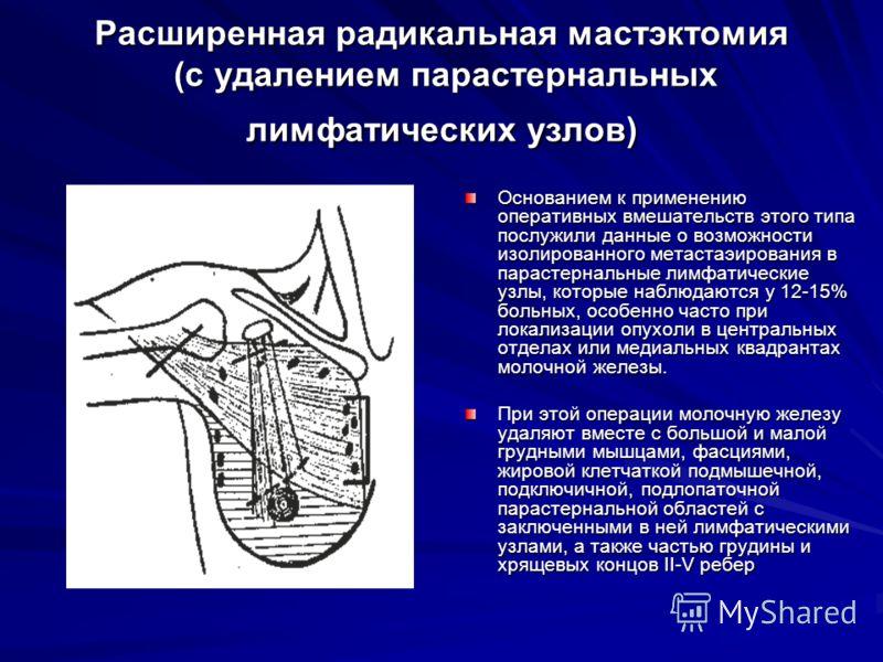 Расширенная радикальная мастэктомия (с удалением парастернальных лимфатических узлов) Основанием к применению оперативных вмешательств этого типа послужили данные о возможности изолированного метастаэирования в парастернальные лимфатические узлы, кот