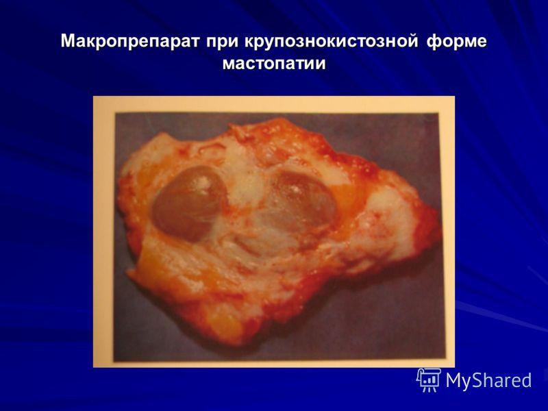 Макропрепарат при крупознокистозной форме мастопатии
