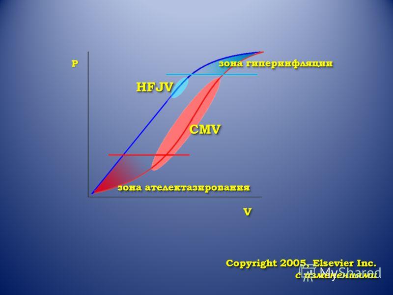 P HFJVHFJV CMVCMV зона ателектазирования зона гиперинфляции VV Copyright 2005, Elsevier Inc. с изменениями