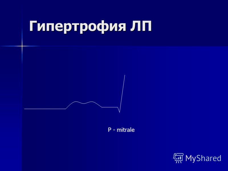 Гипертрофия ЛП Р - mitrale