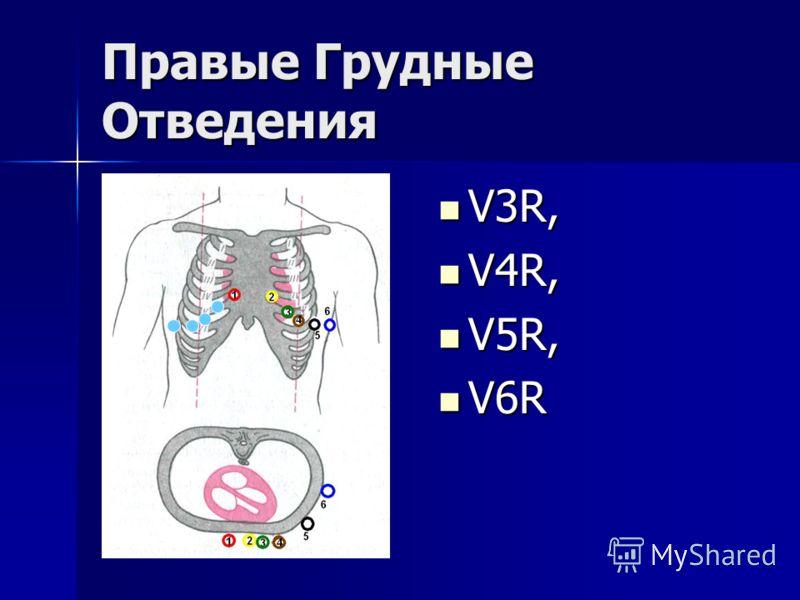 Правые Грудные Отведения V3R, V3R, V4R, V4R, V5R, V5R, V6R V6R