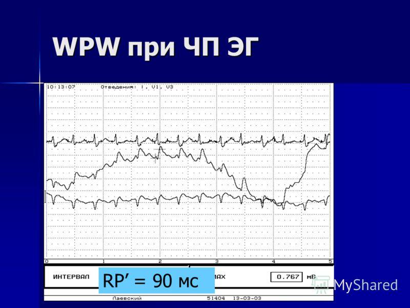 WPW при ЧП ЭГ RP = 90 мс