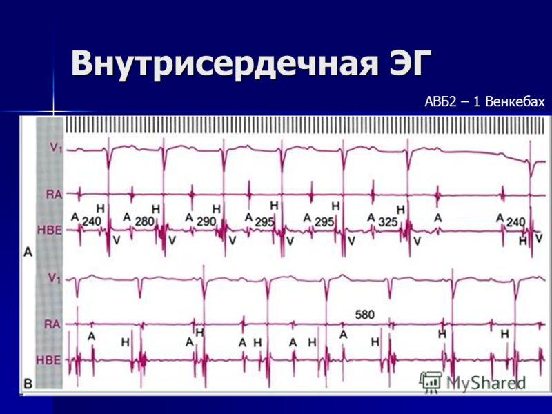 Внутрисердечная ЭГ АВБ2 – 1 Венкебах