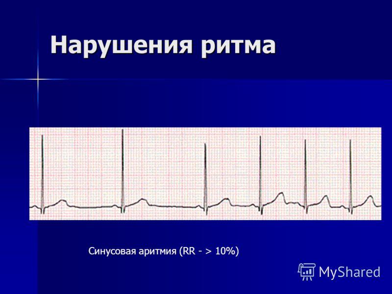Нарушения ритма Синусовая аритмия (RR - > 10%)