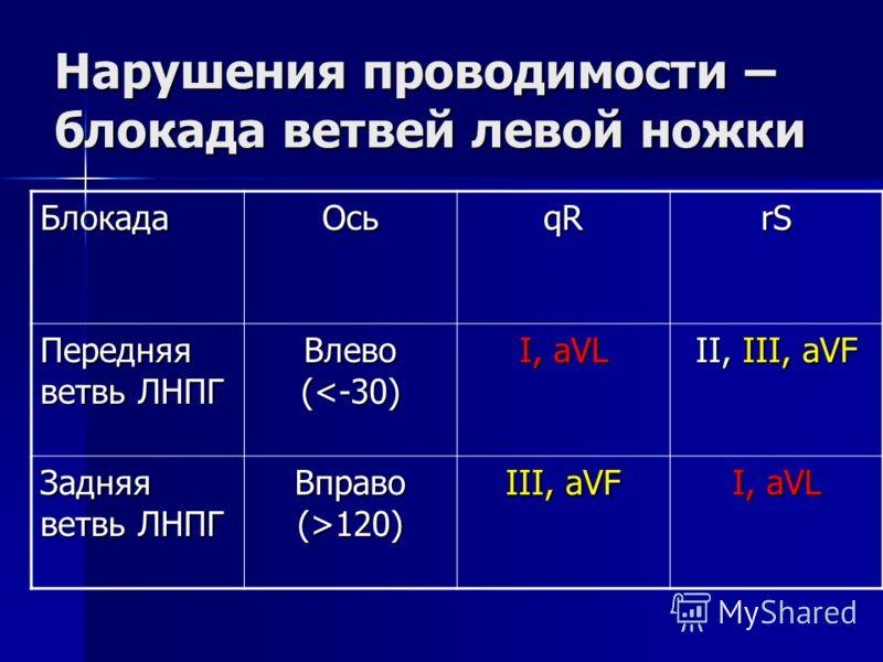 Нарушения проводимости – блокада ветвей левой ножки БлокадаОсьqRrS Передняя ветвь ЛНПГ Влево (120) III, aVF I, aVL