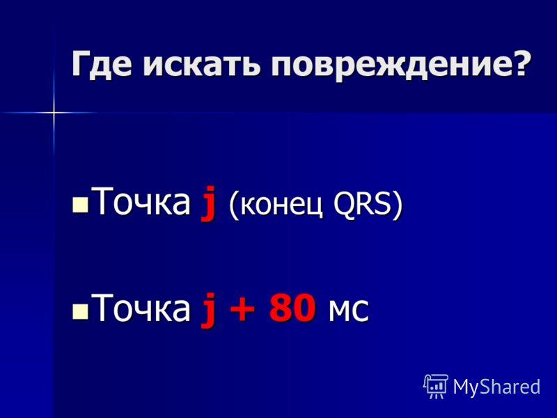 Где искать повреждение? Точка j (конец QRS) Точка j (конец QRS) Точка j + 80 мс Точка j + 80 мс
