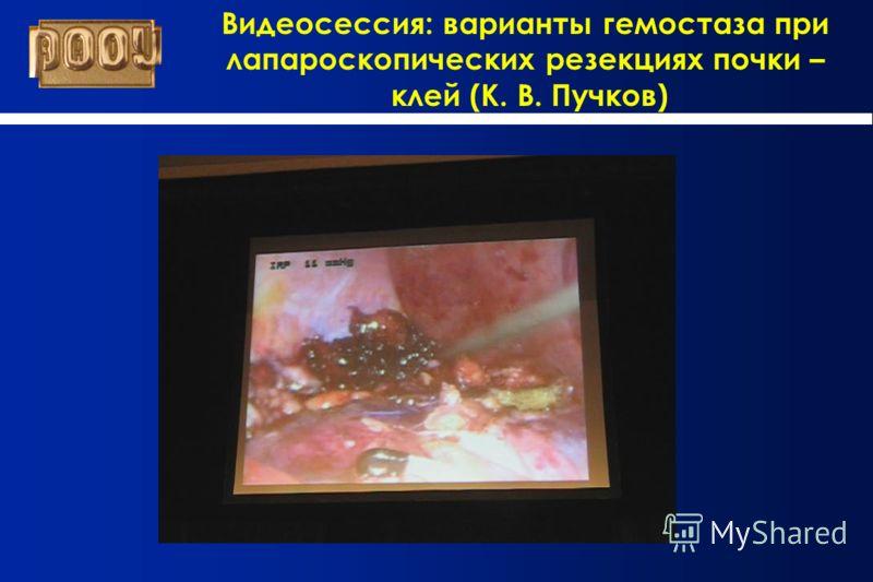 Видеосессия: варианты гемостаза при лапароскопических резекциях почки – клей (К. В. Пучков)