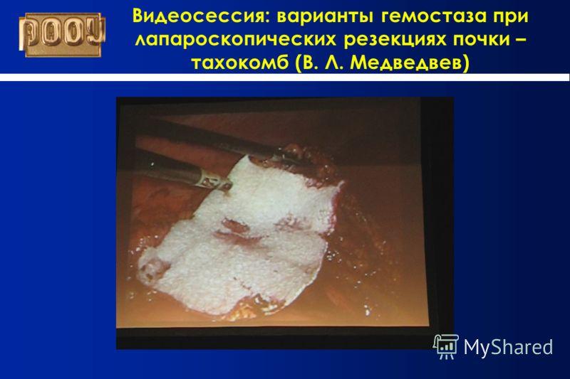 Видеосессия: варианты гемостаза при лапароскопических резекциях почки – тахокомб (В. Л. Медведвев)