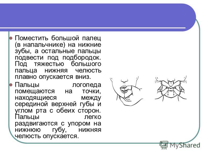 Поместить большой палец (в напальчнике) на нижние зубы, а остальные пальцы подвести под подбородок. Под тяжестью большого пальца нижняя челюсть плавно опускается вниз. Пальцы логопеда помещаются на точки, находящиеся между серединой верхней губы и уг