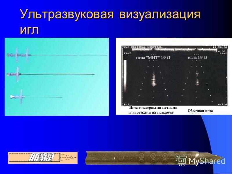 Ультразвуковая визуализация игл Игла с лазерными метками и нарезками на мандрене Обычная игла