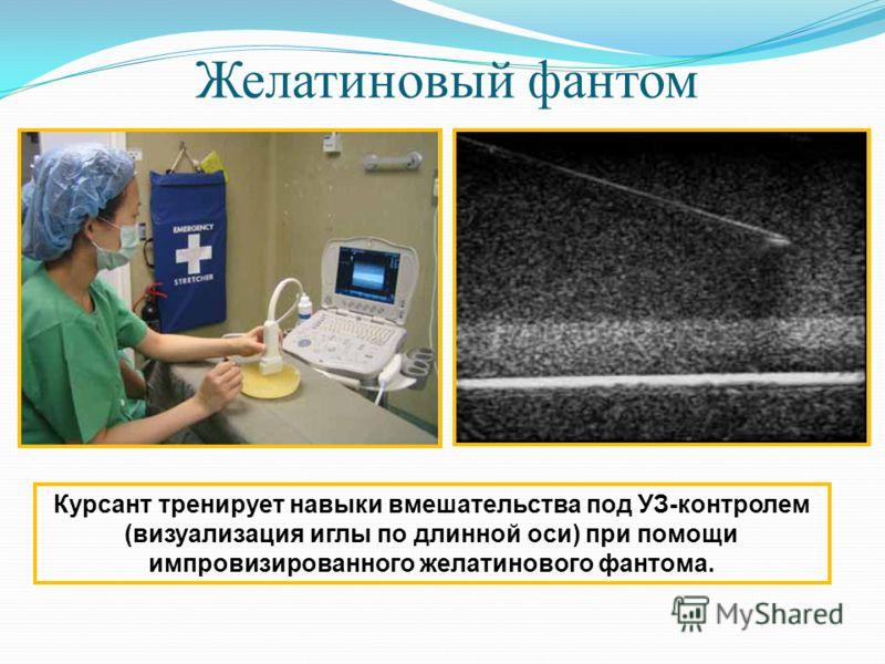 Желатиновый фантом Курсант тренирует навыки вмешательства под УЗ-контролем (визуализация иглы по длинной оси) при помощи импровизированного желатинового фантома.