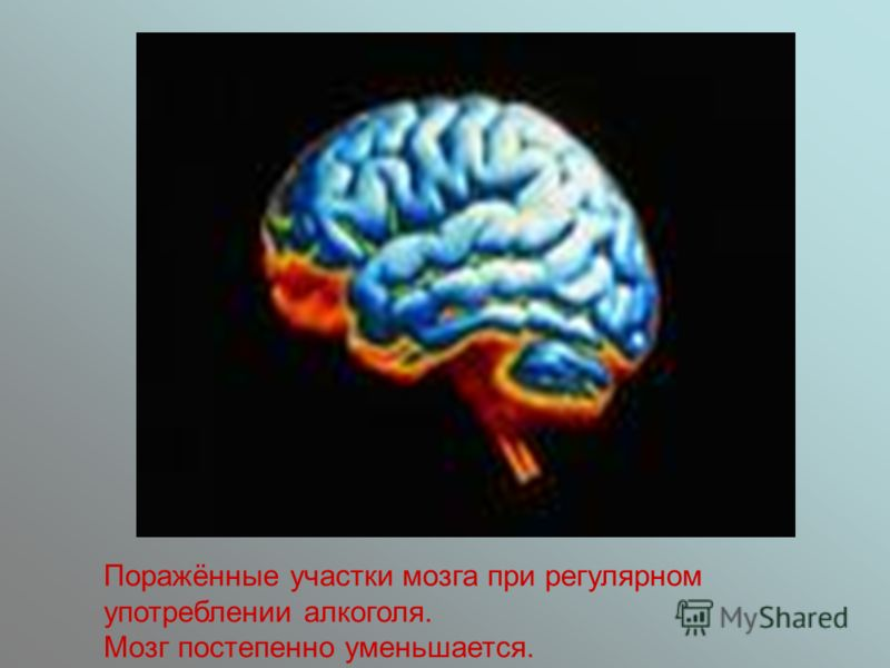 Поражённые участки мозга при регулярном употреблении алкоголя. Мозг постепенно уменьшается.