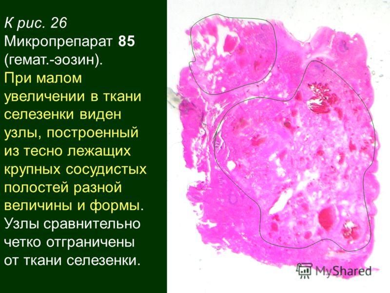 К рис. 26 Микропрепарат 85 (гемат.-эозин). При малом увеличении в ткани селезенки виден узлы, построенный из тесно лежащих крупных сосудистых полостей разной величины и формы. Узлы сравнительно четко отграничены от ткани селезенки.