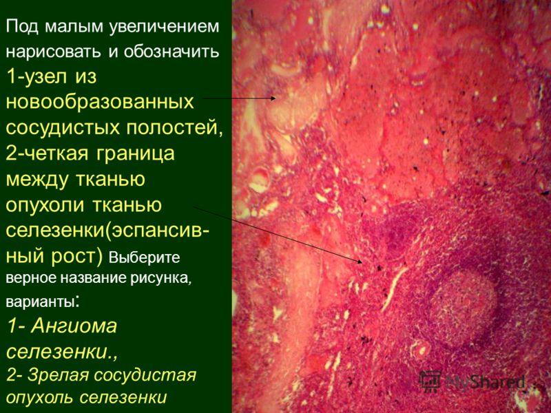 Под малым увеличением нарисовать и обозначить 1-узел из новообразованных сосудистых полостей, 2-четкая граница между тканью опухоли тканью селезенки(эспансив- ный рост) Выберите верное название рисунка, варианты : 1- Ангиома селезенки., 2- Зрелая сос
