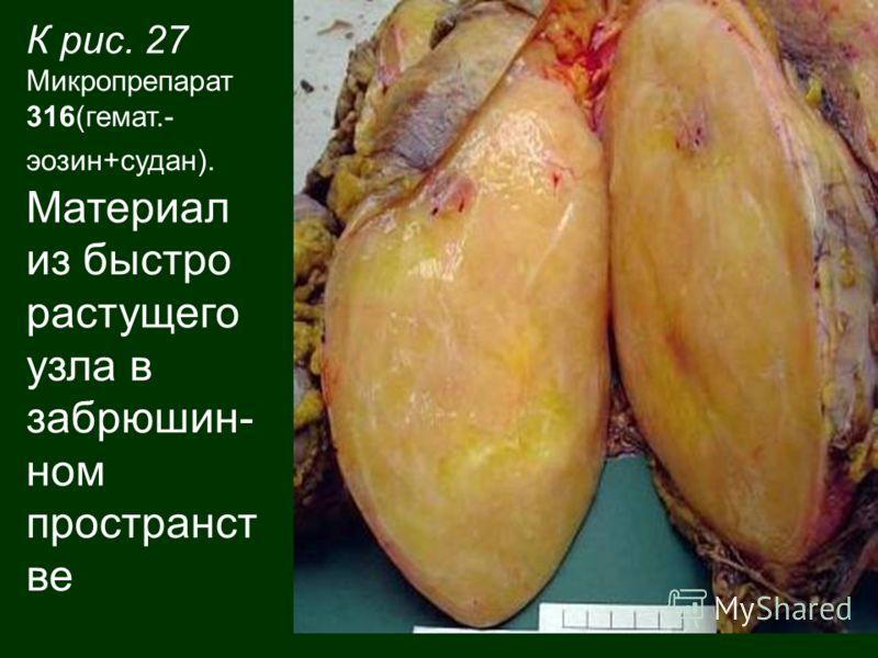 К рис. 27 Микропрепарат 316(гемат.- эозин+судан). Материал из быстро растущего узла в забрюшин- ном пространст ве