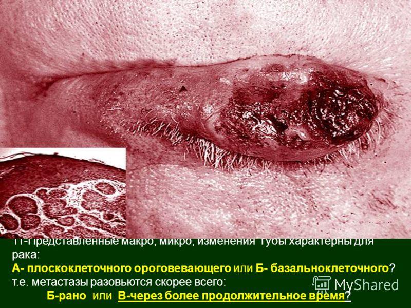 11-Представленные макро, микро, изменения губы характерны для рака: А- плоскоклеточного ороговевающего или Б- базальноклеточного? т.е. метастазы разовьются скорее всего: Б-рано или В-через более продолжительное время?