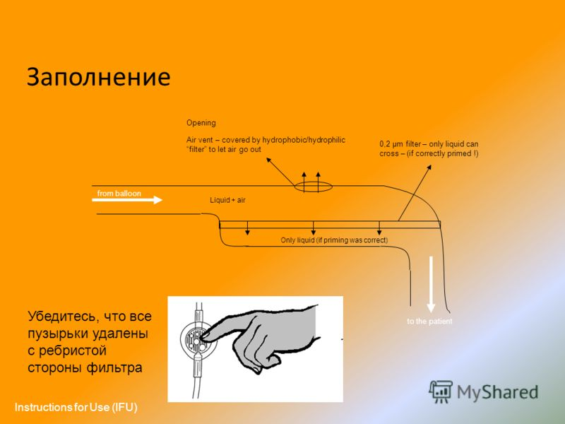 from balloon to the patient 0,2 µm filter – only liquid can cross – (if correctly primed !) Only liquid (if priming was correct) Liquid + air Opening Air vent – covered by hydrophobic/hydrophilic filter to let air go out Заполнение Убедитесь, что все