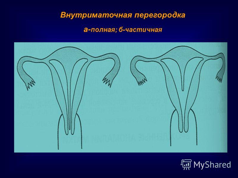 Внутриматочная перегородка а- полная; б-частичная