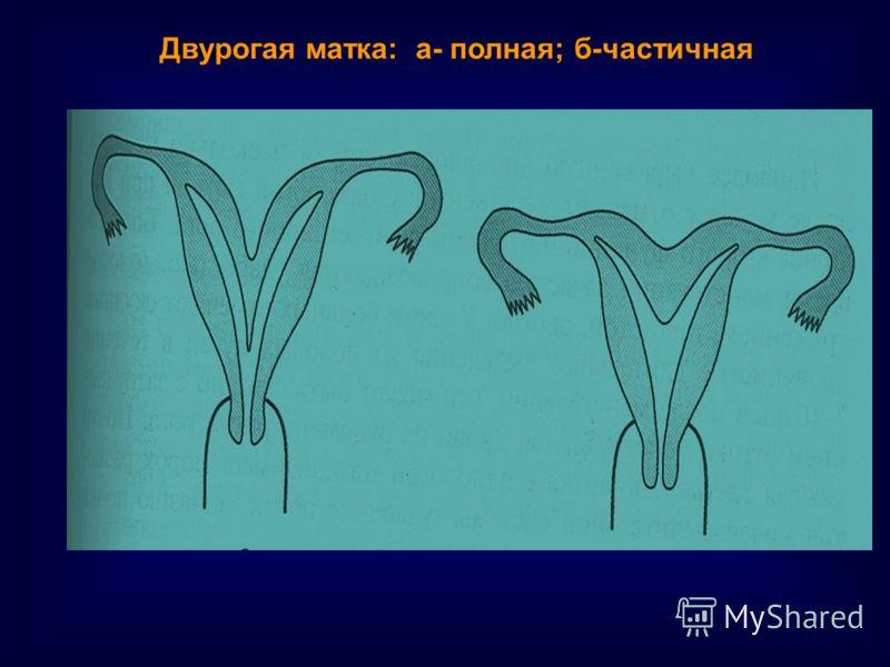 Двурогая матка: а- полная; б-частичная