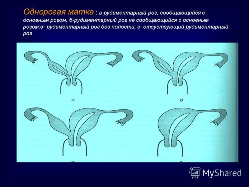 Однорогая матка : а-рудиментарный рог, сообщающийся с основным рогом, б-рудиментарный рог не сообщающийся с основным рогом;в- рудиментарный рог без полости; г- отсуствующий рудиментарный рог